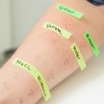 positiver Hauttest (1)